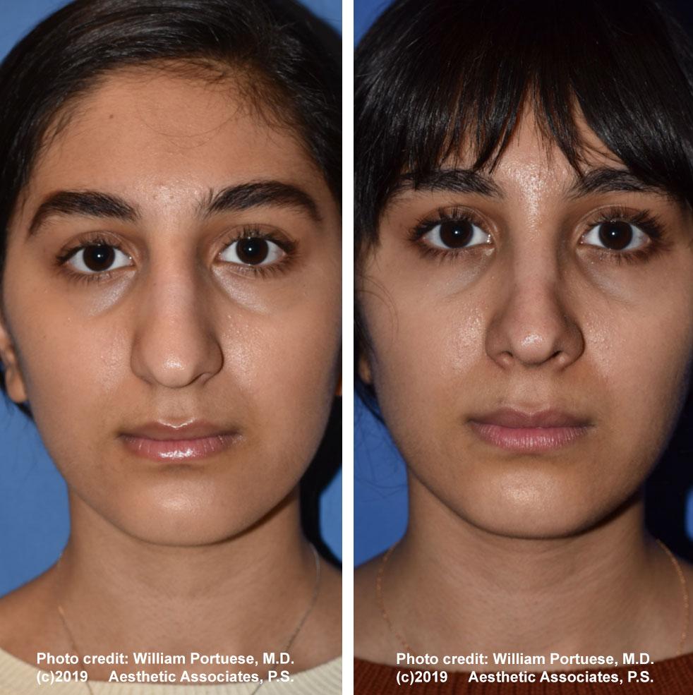 rhinoplasty-61719-8a
