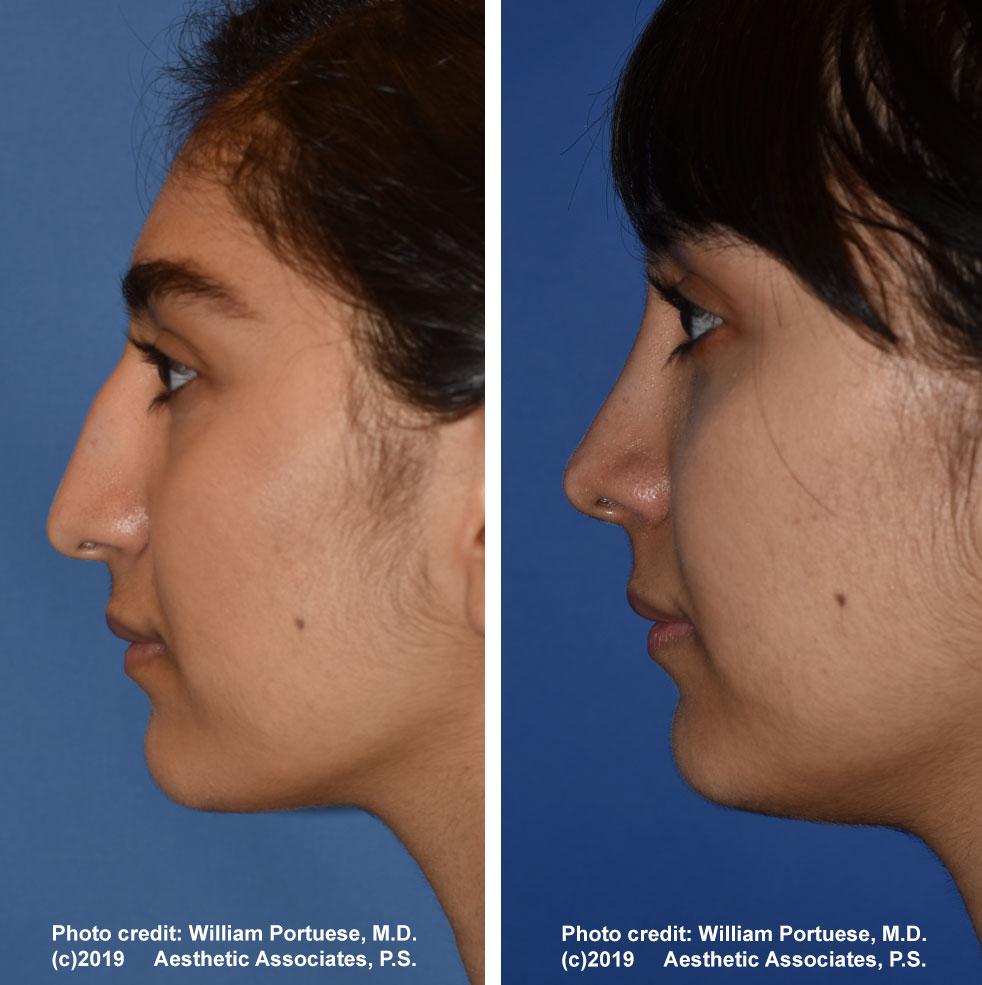rhinoplasty-61719-8b