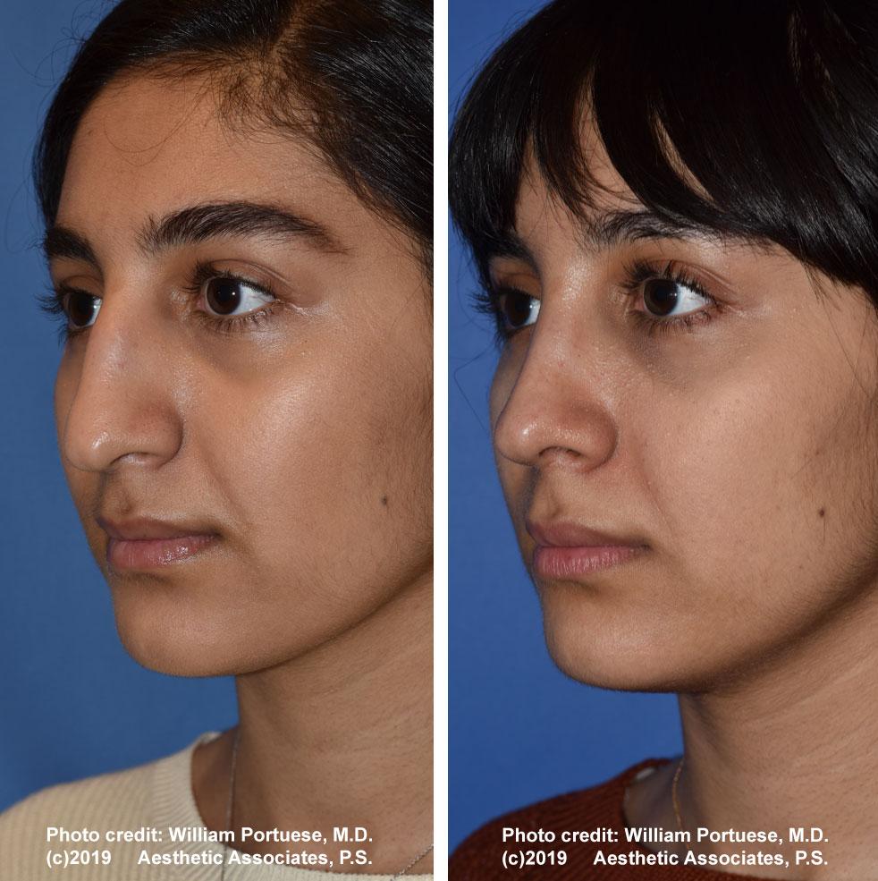 rhinoplasty-61719-8c