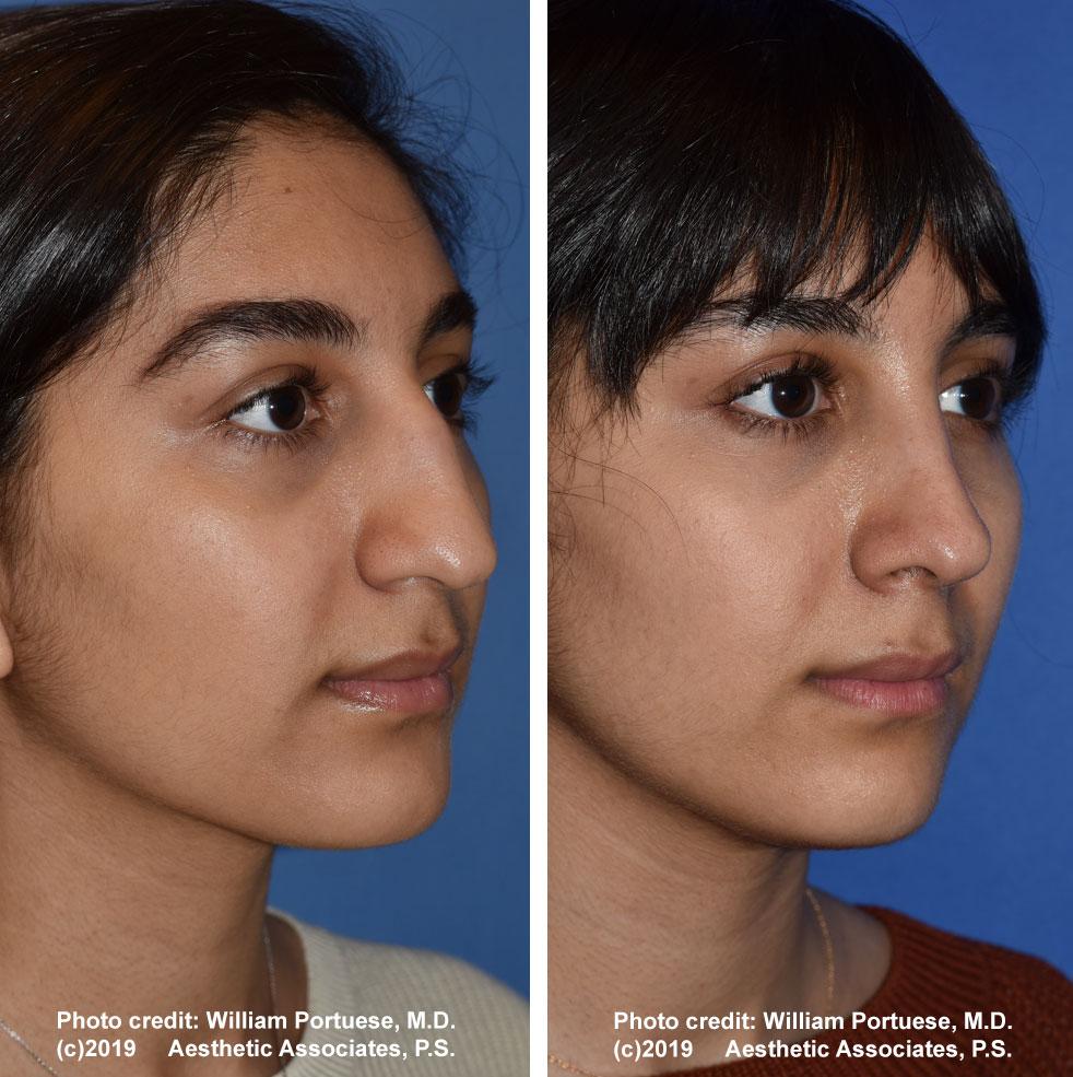 rhinoplasty-61719-8d