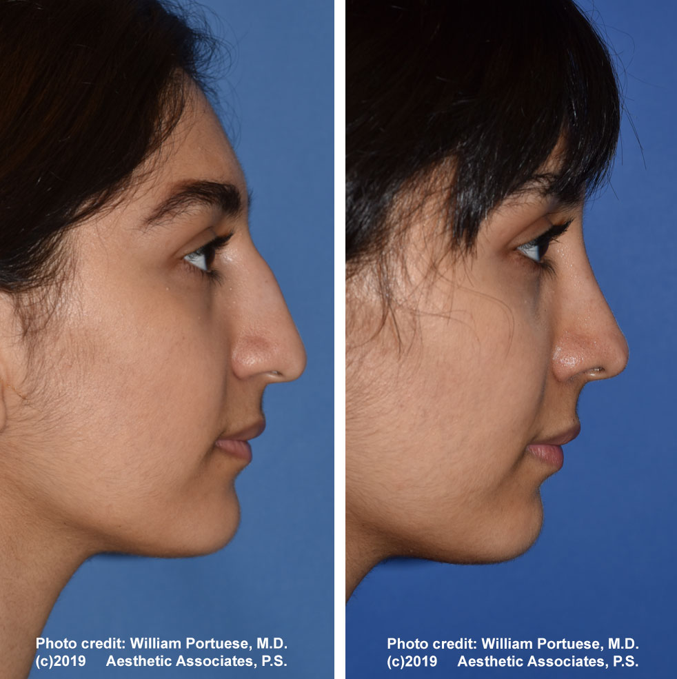 rhinoplasty-61719-8e