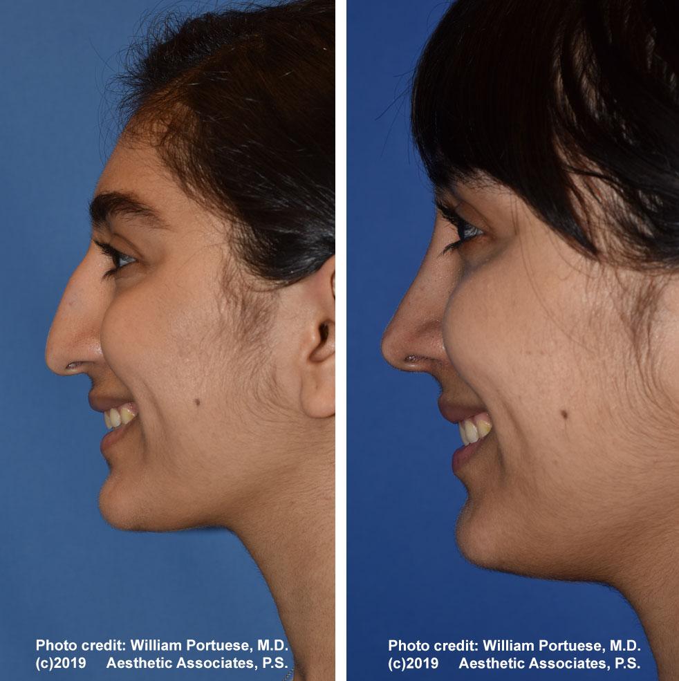 rhinoplasty-61719-8f
