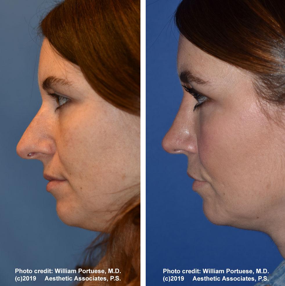 rhinoplasty-61719-9b
