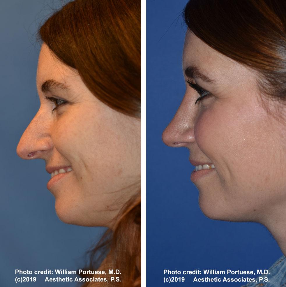 rhinoplasty-61719-9f