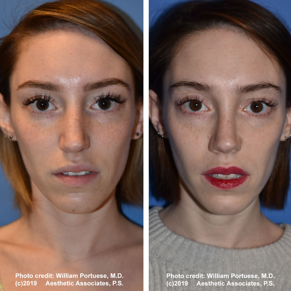 rhinoplasty-dorsalhumpremoval-1a