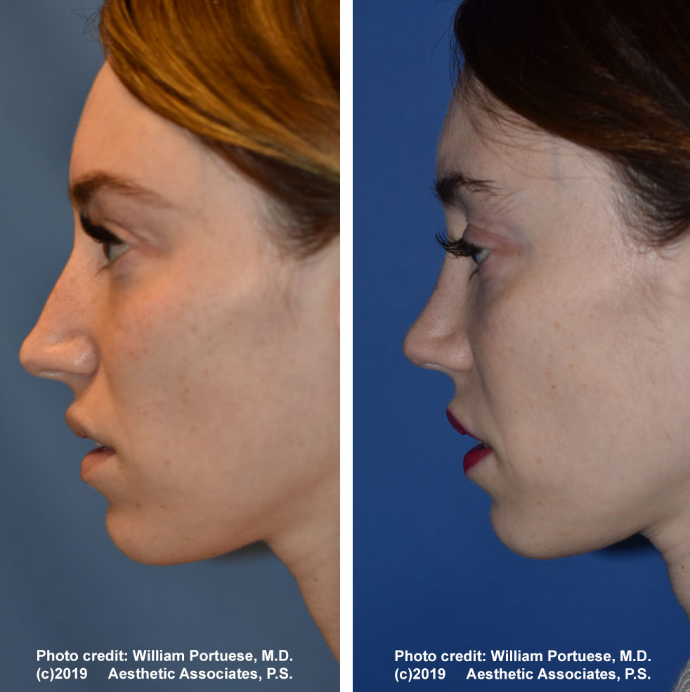 rhinoplasty-dorsalhumpremoval-1b