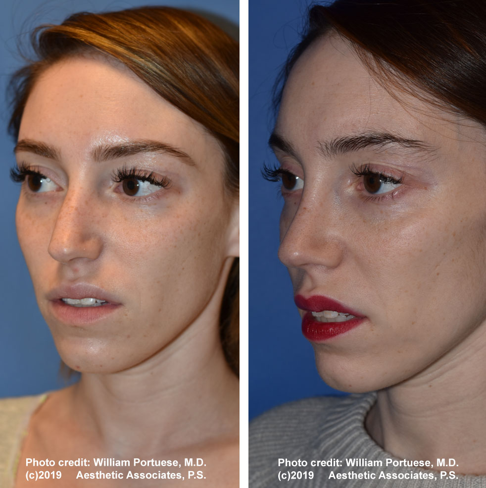 rhinoplasty-dorsalhumpremoval-1c