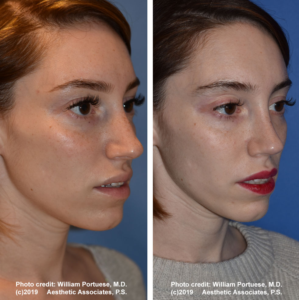rhinoplasty-dorsalhumpremoval-1d