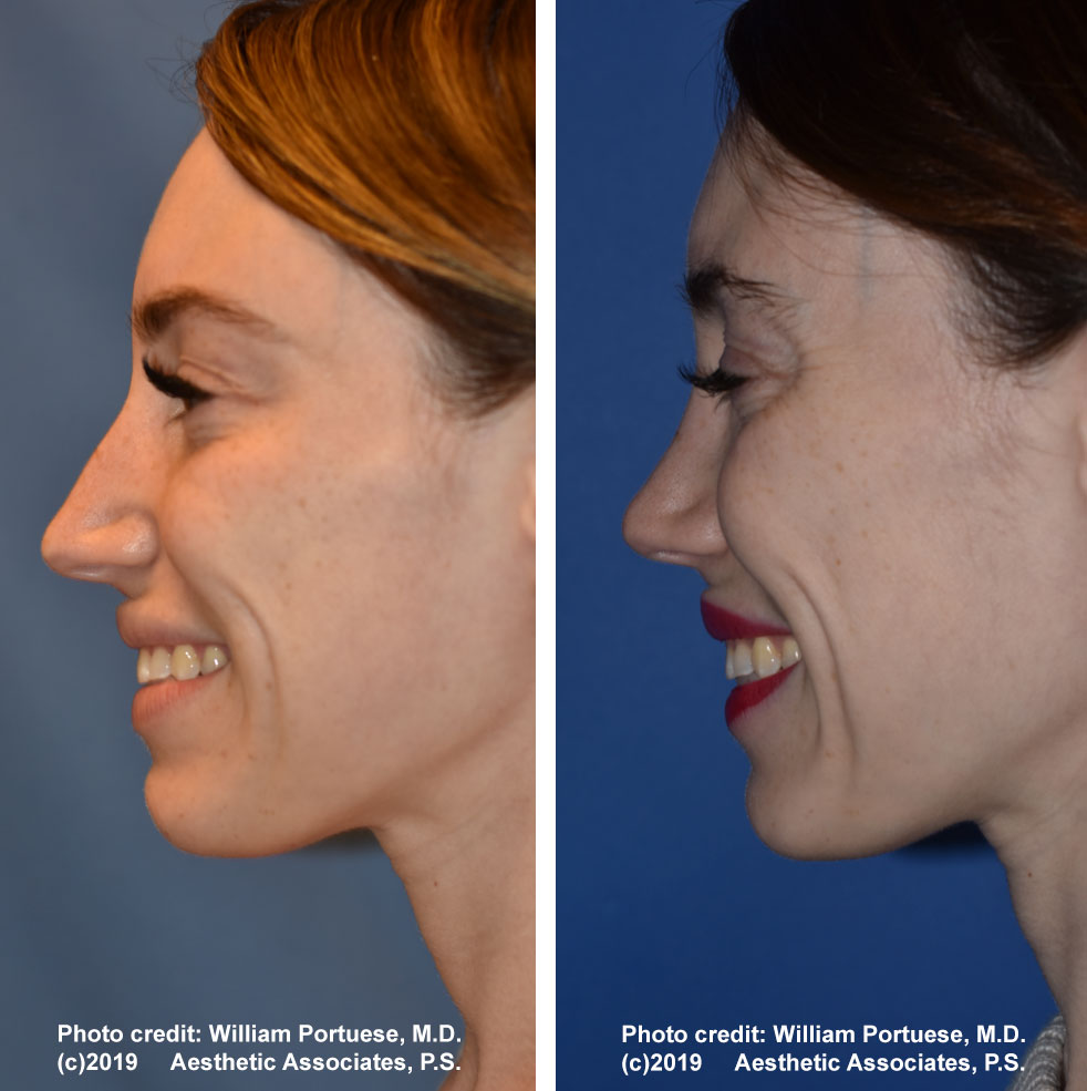 rhinoplasty-dorsalhumpremoval-1e