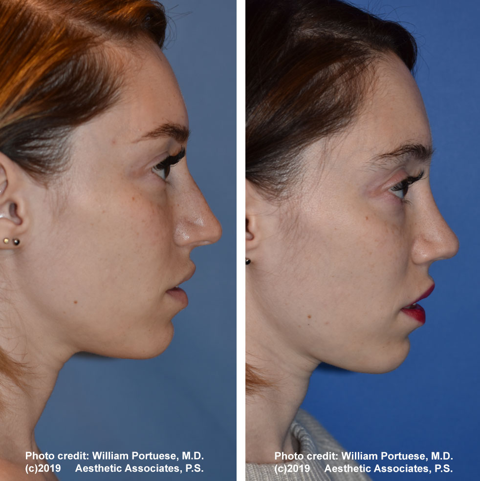 rhinoplasty-dorsalhumpremoval-1f
