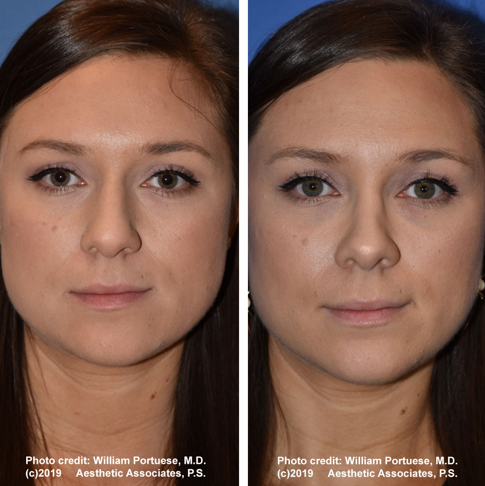 rhinoplasty-dorsalhumpremoval-2a