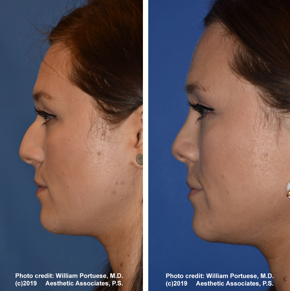 rhinoplasty-dorsalhumpremoval-2b