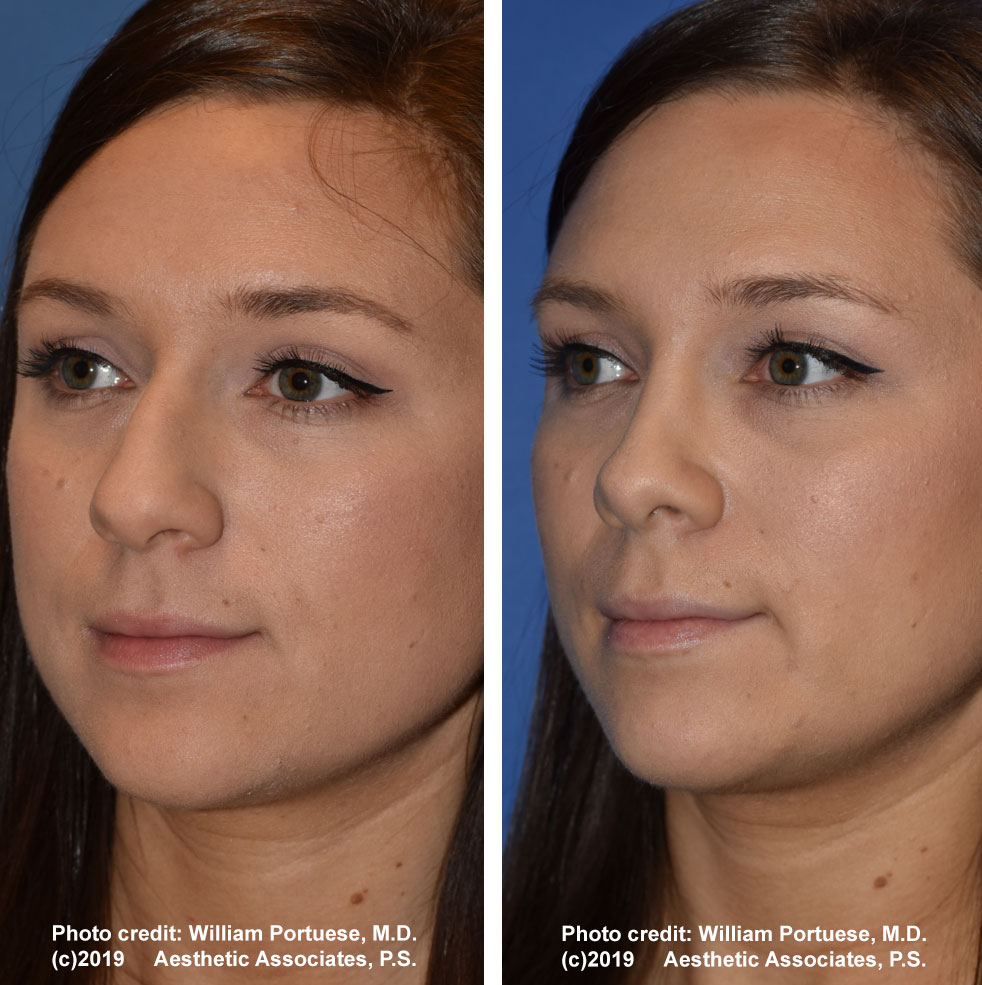 rhinoplasty-dorsalhumpremoval-2c