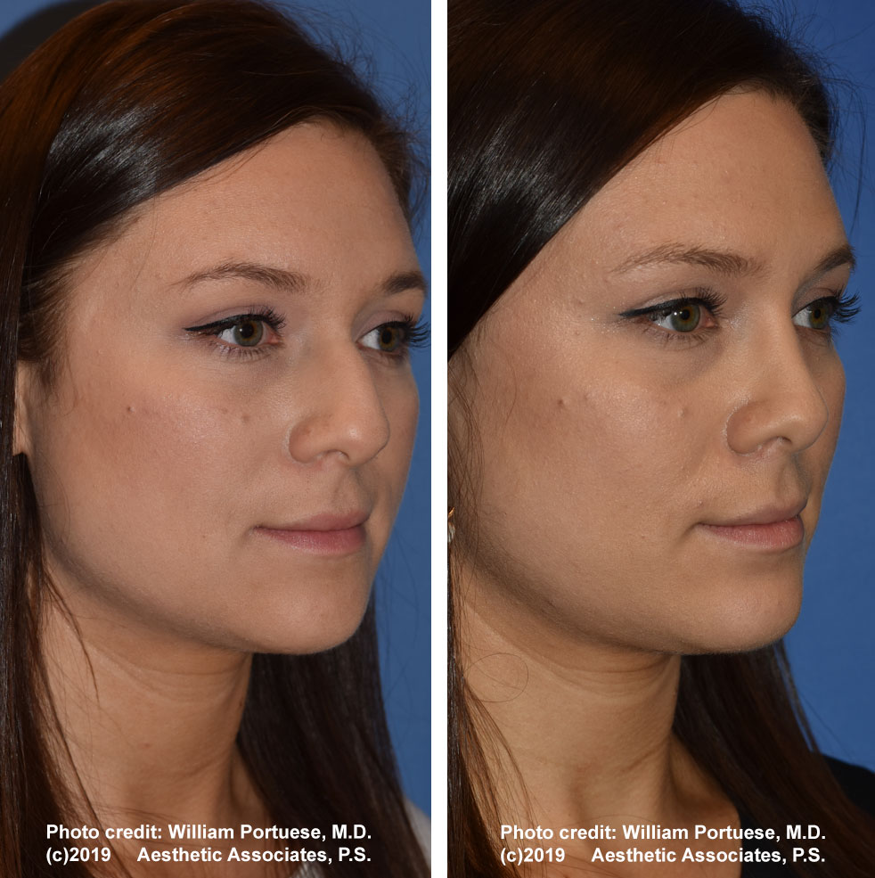 rhinoplasty-dorsalhumpremoval-2d