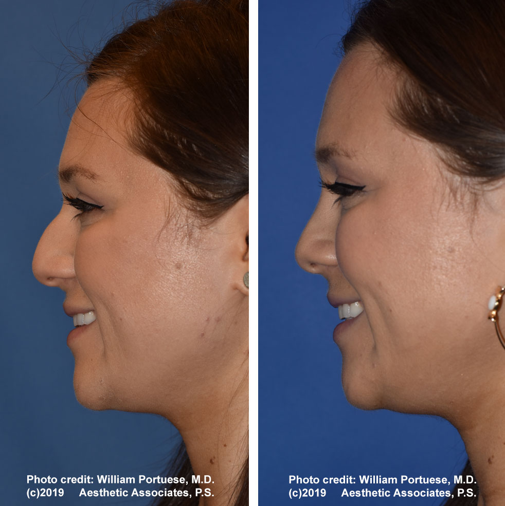 rhinoplasty-dorsalhumpremoval-2e