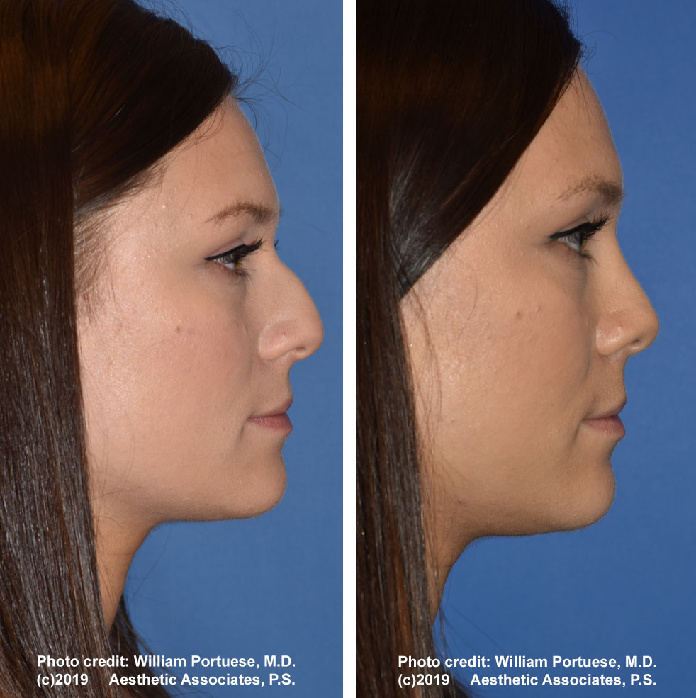rhinoplasty-dorsalhumpremoval-2f