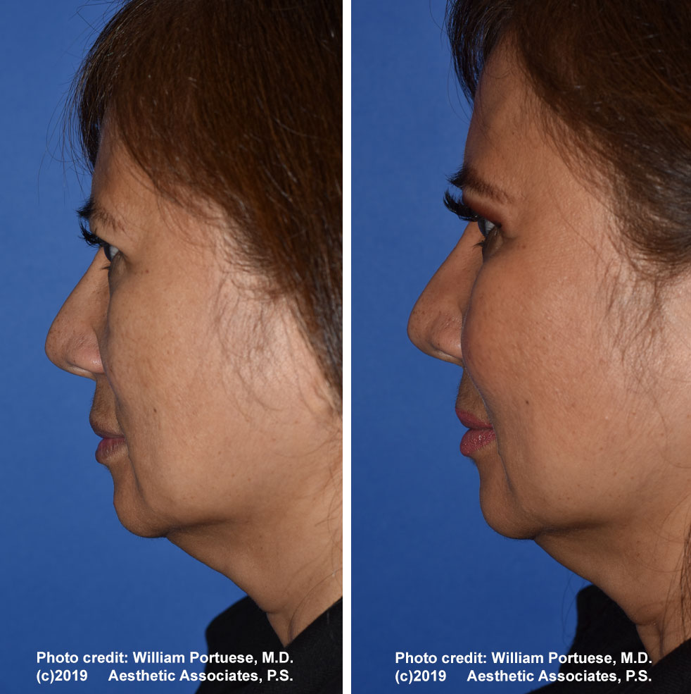 cheek-implant-61719-1b
