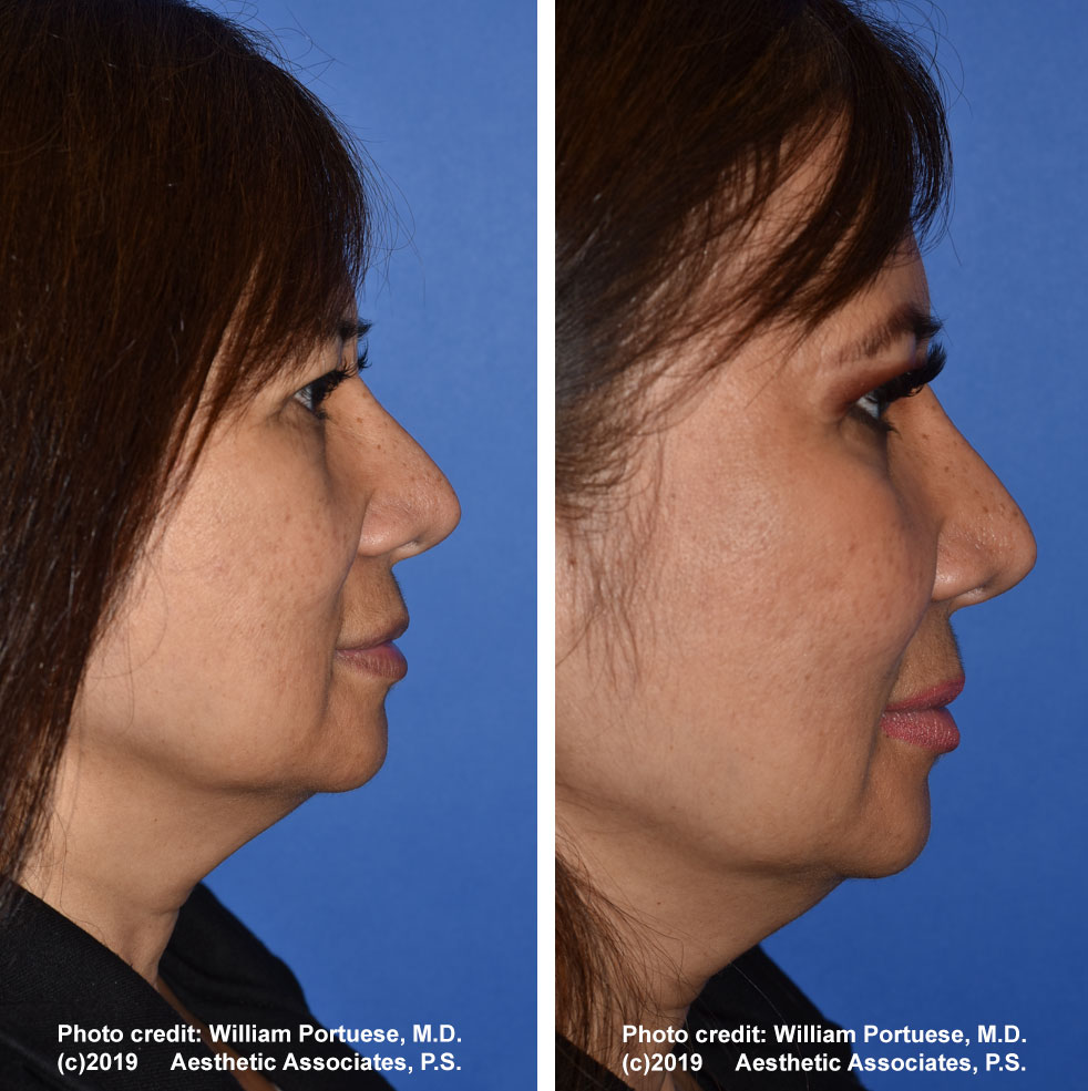 cheek-implant-61719-1e