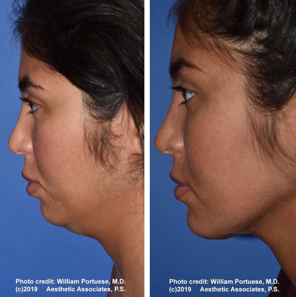 necklift-neck-lipo-61719-1b