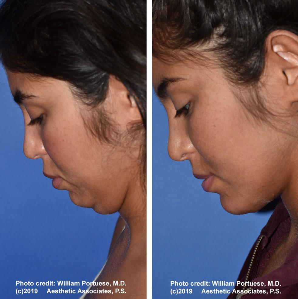 necklift-neck-lipo-61719-1e