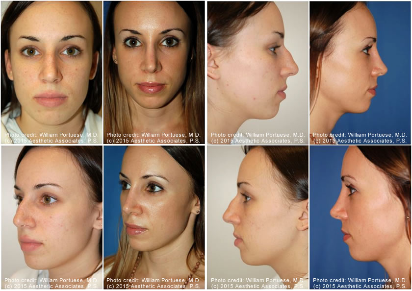 Before and After Photo Gallery of Asymmetrical Nose