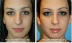 Asymmetric Nose Rhinoplasty images