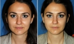 Asymmetric Nose Surgery photos