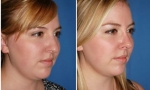 Asymmetric Rhinoplasty  photos