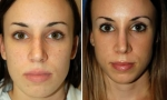 Asymmetric Nose Surgery images