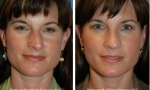 Asymmetrical Tip Nose Surgery photos