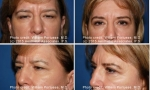 Eyelid Lift before and after images