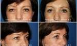 Blepharoplasty before and after photos