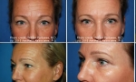 Blepharoplasty before and after images