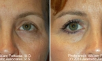 Eyelid Lift before and after photo