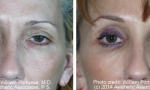 Eyelid Lift before and after photos