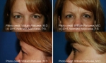 Upper Blepharoplasty before and after photos