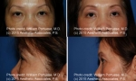 Lower Blepharoplasty before and after photos