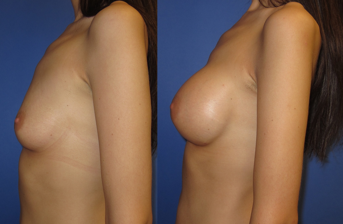 breast-augmentation-102a_orig