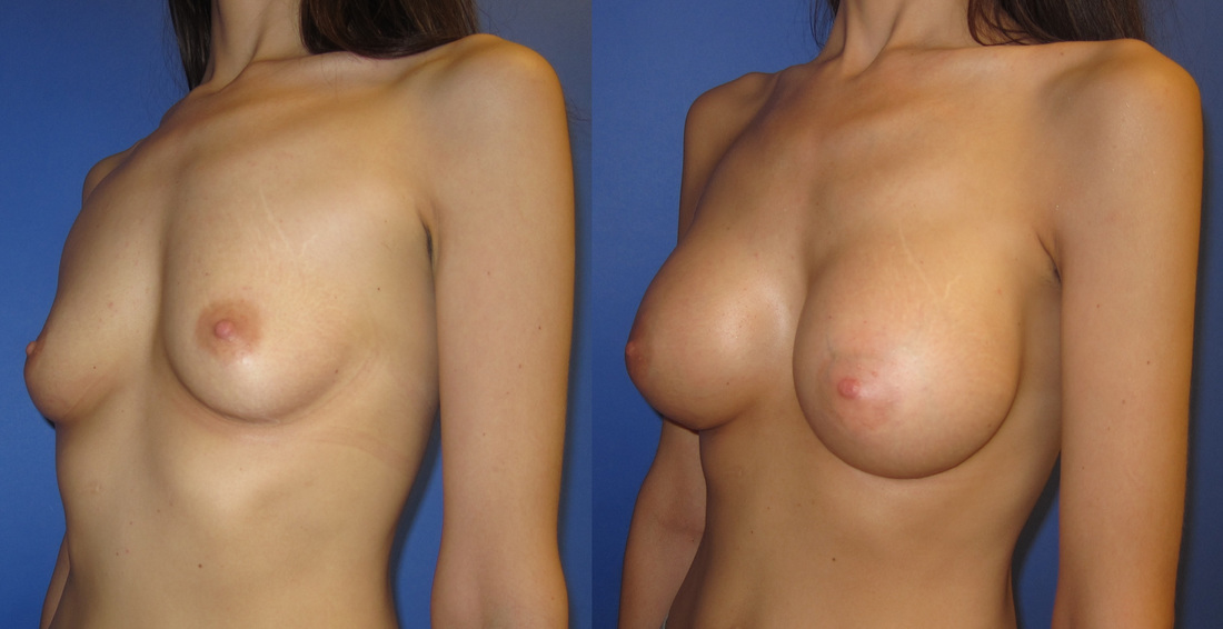 breast-augmentation-102b_orig
