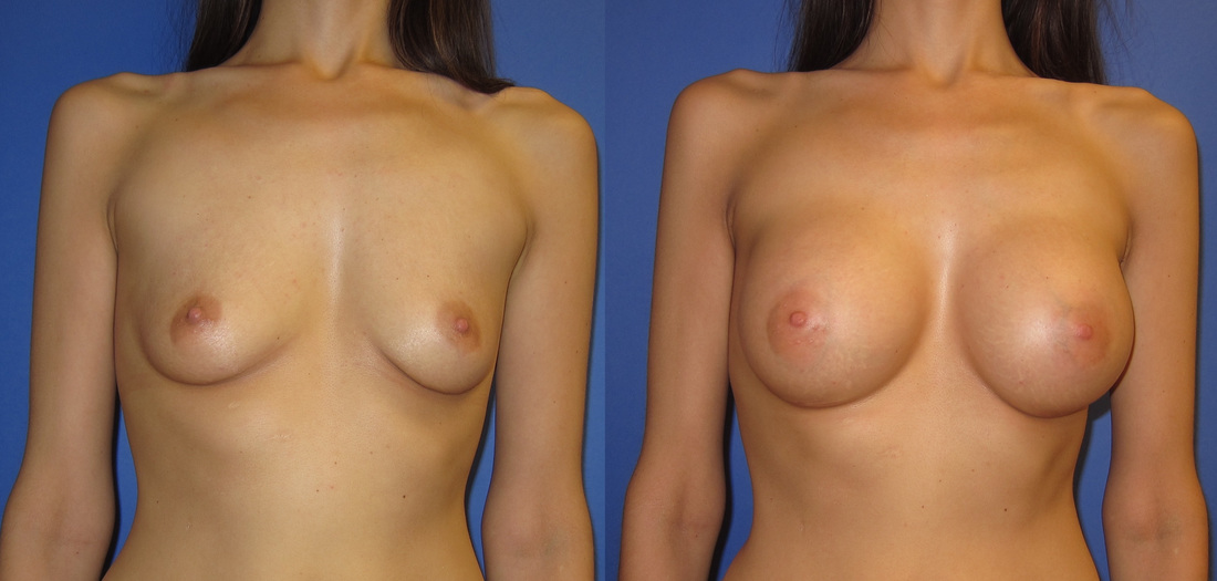 breast-augmentation-102c_orig