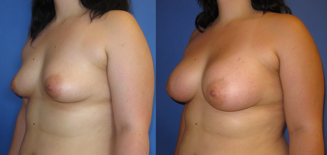 breast-augmentation-103b_2_orig