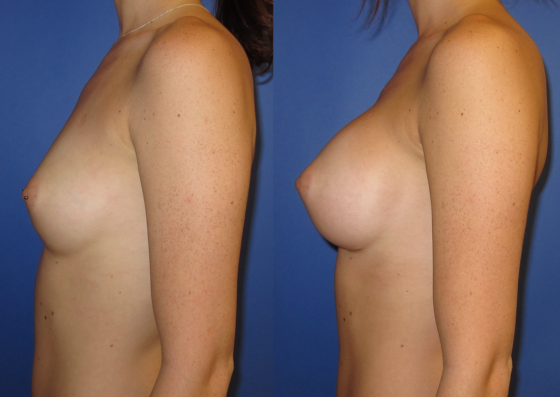 breast-augmentation-before-and-after-105a_2_orig