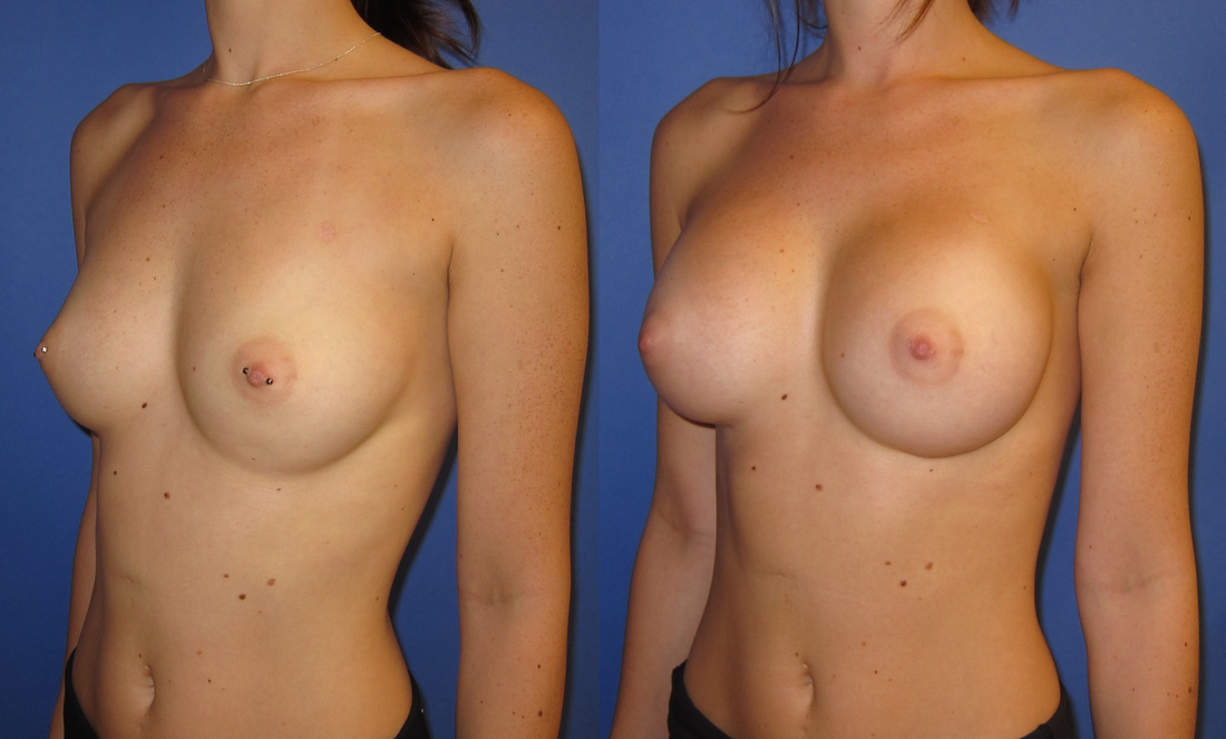 breast-augmentation-before-and-after-105b_2_orig