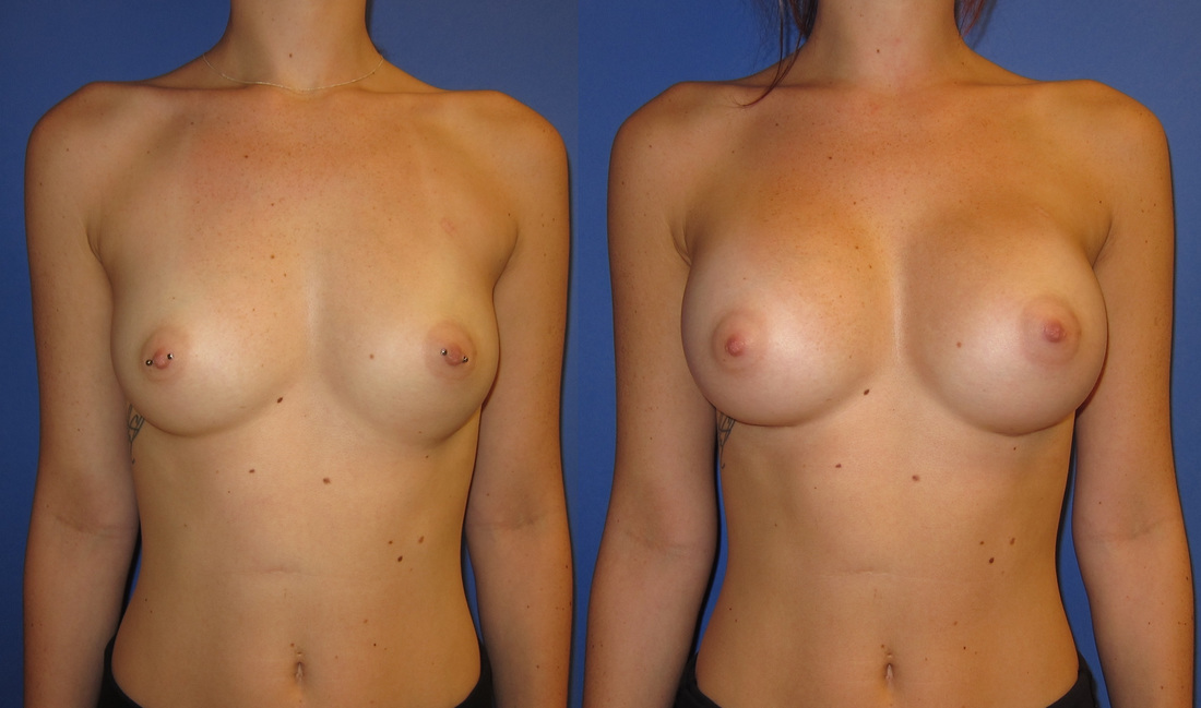 breast-augmentation-before-and-after-105c_3_orig
