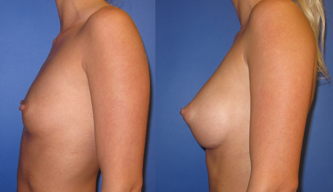 breast-augmentation-before-and-after-106a_3_orig