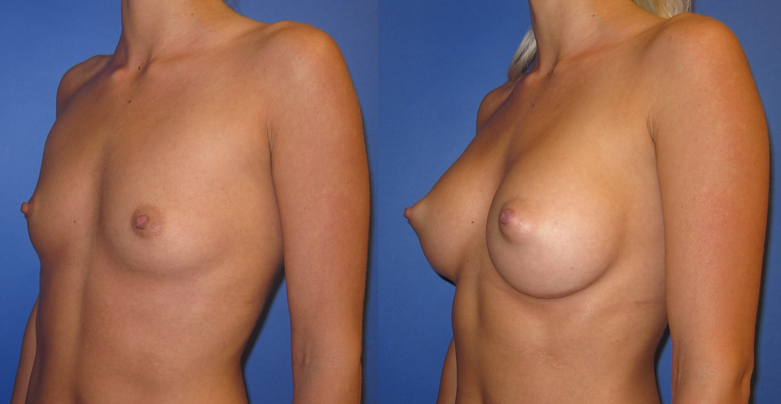 breast-augmentation-before-and-after-106b_2_orig