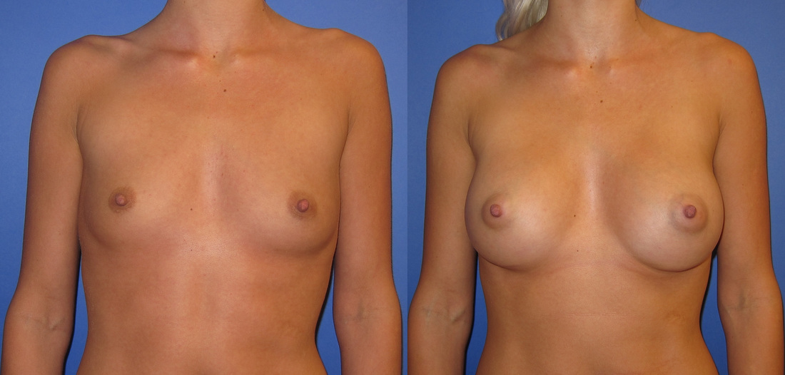 breast-augmentation-before-and-after-106c_5_orig