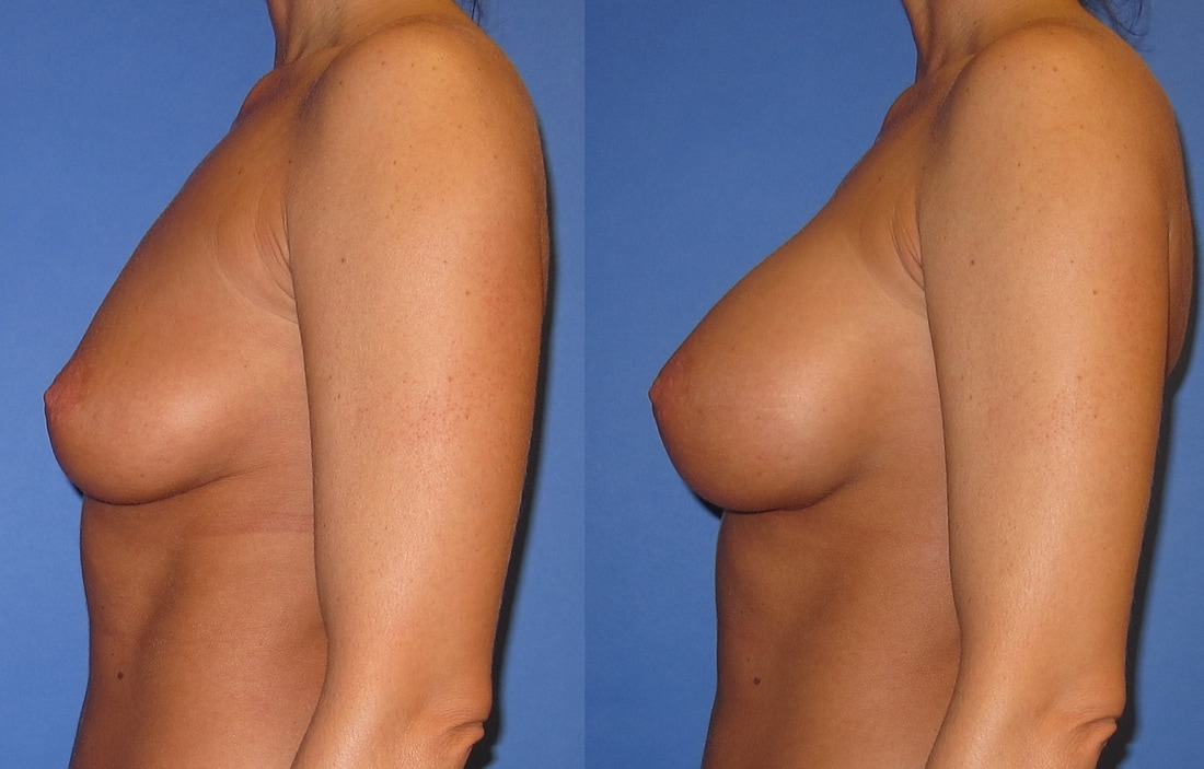 breast-augmentation-before-and-after-108a_orig