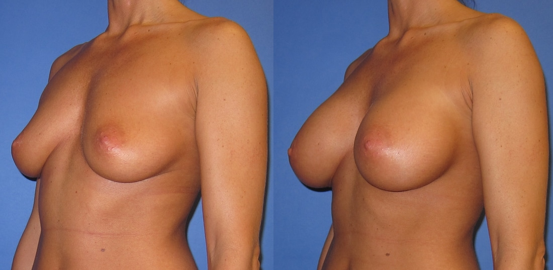 breast-augmentation-before-and-after-108b_orig