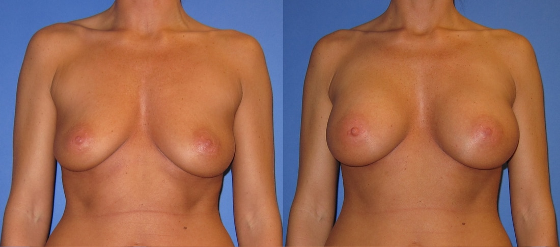 breast-augmentation-before-and-after-108c_1_orig